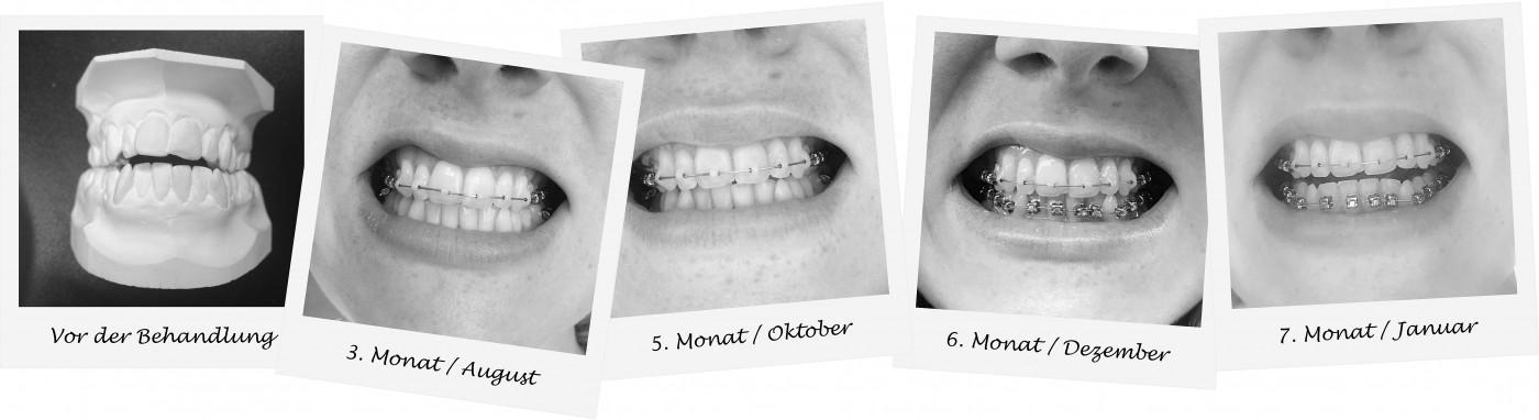 Zahnspange als Erwachsener Erfahrungsbericht, braces for adults experience